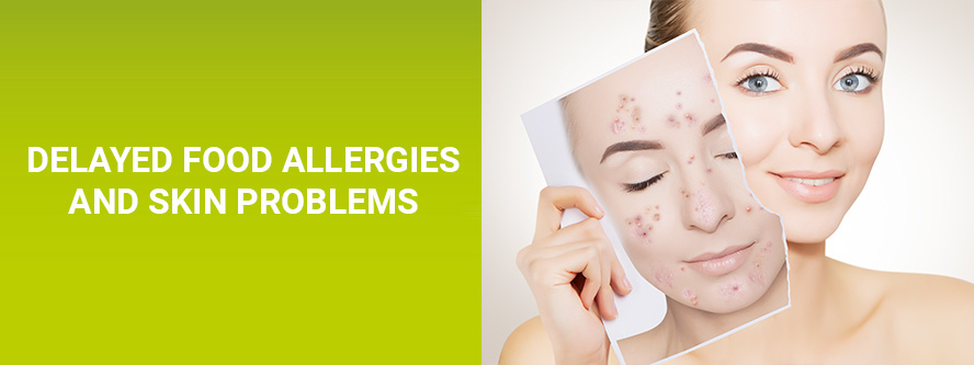 Delayed food allergies and skin problems
